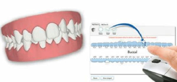 透明なマウスピース矯正とは|荏田ファミリー歯科・矯正歯科
